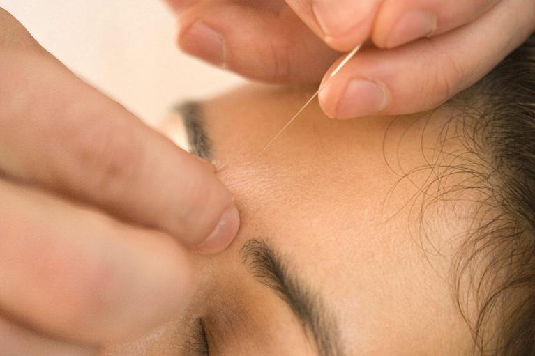 顔面神経麻痺に関するアドバイス