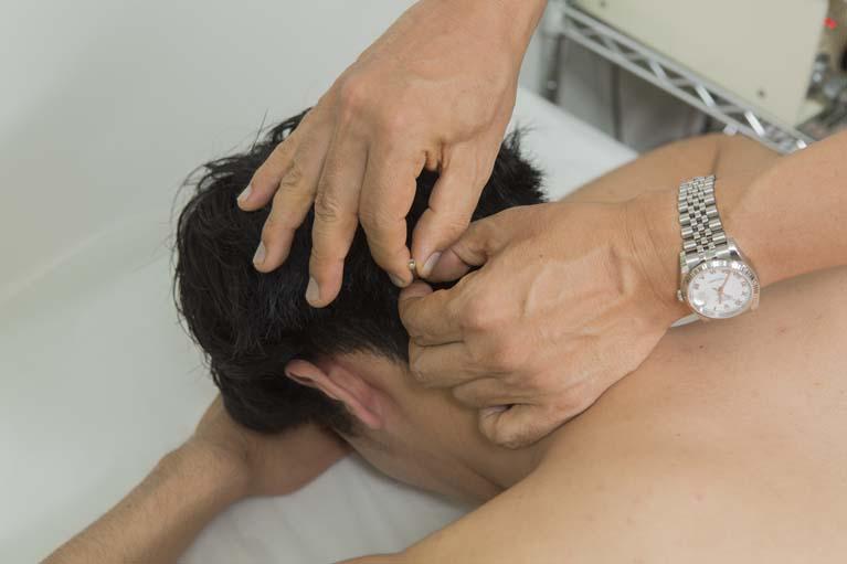 繰り返す肩こり・頭痛のための予防鍼灸